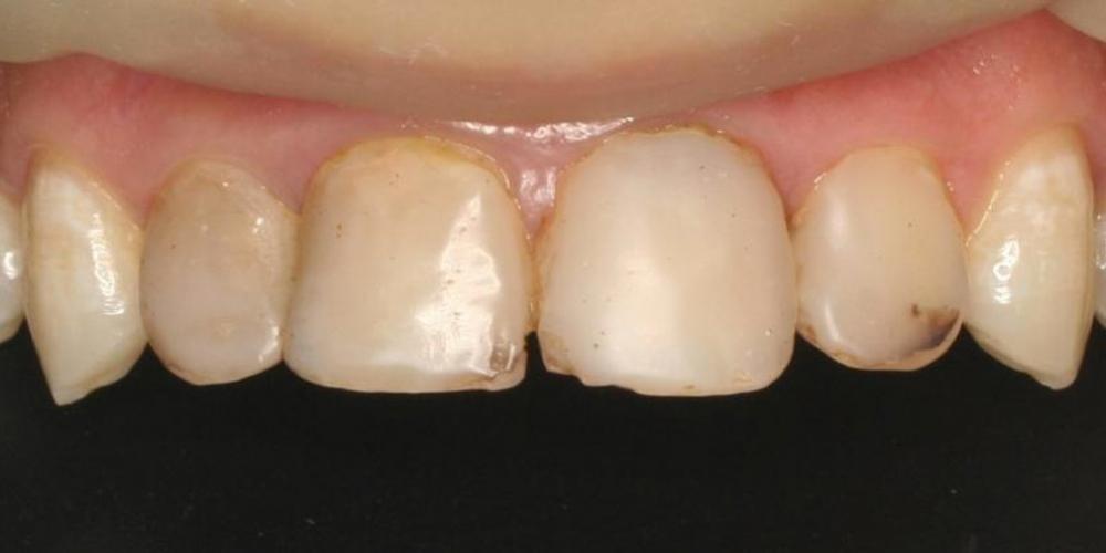 изготовление керамических виниров 3/4 на передние зубы фото до