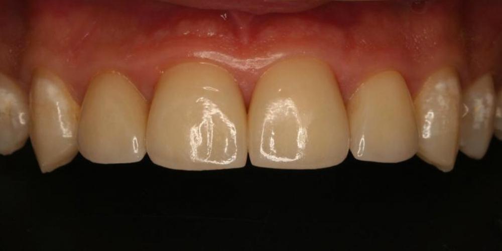 Изготовление керамических виниров 3/4 на передние зубы фото после